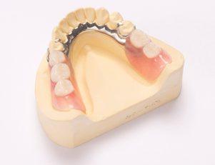 熱可塑性義歯|白河のジュンデンタルクリニック