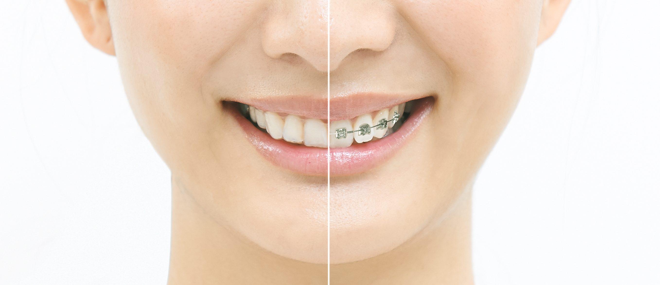 矯正 値段 の 歯